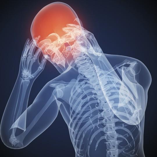 headache-540x540
